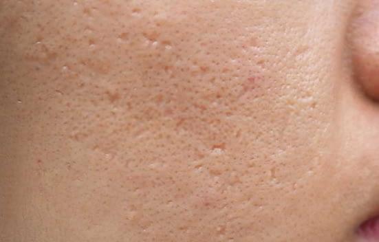 Crema para cicatrización del acné
