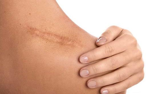 Cremas para mejores cicatrices