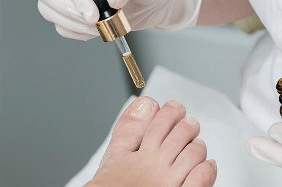 Micosis de las uñas de las manos y los pies