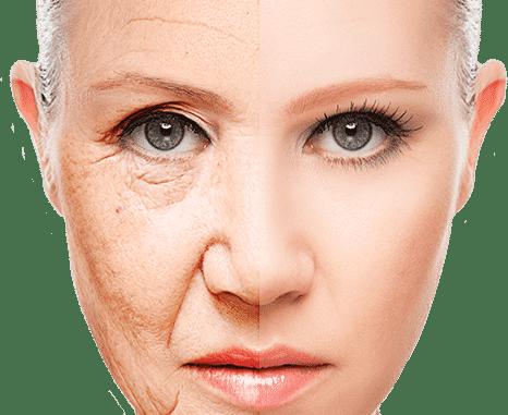 Ácido hialurónico: efectos sobre la piel