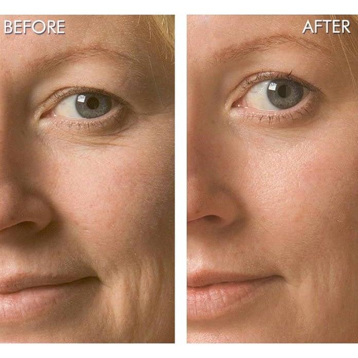 Oxigenoterapia facial antes y después