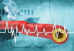 Contralip NO colesterol contra los triglicéridos
