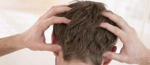 causas de dolor en el cuero cabelludo