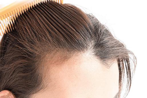 Adelgazamiento del cabello