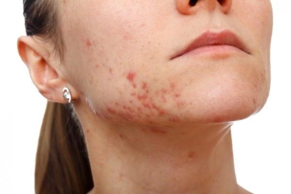 Como se cubren las cicatrices del acné