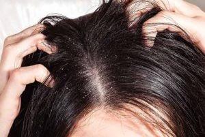 las causas y remedios del cuero cabelludo seco