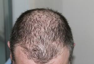 Krestina PRO Funciona con la caída del cabello