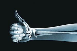 lista de suplementos para la osteoporosis